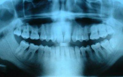 Que faire des vieilles radiographies médicales ?