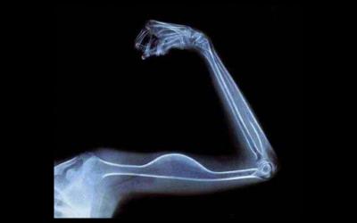 Après le recyclage, quel réemploi pour les clichés de radiologie ?