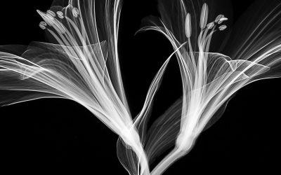 Quel est le processus de lavage des films radiographies ?